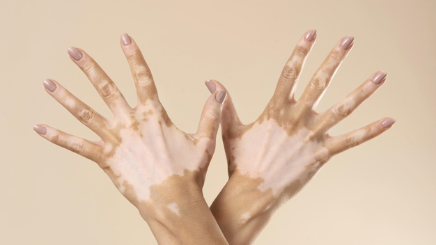 Dia Mundial do Vitiligo busca combater o preconceito